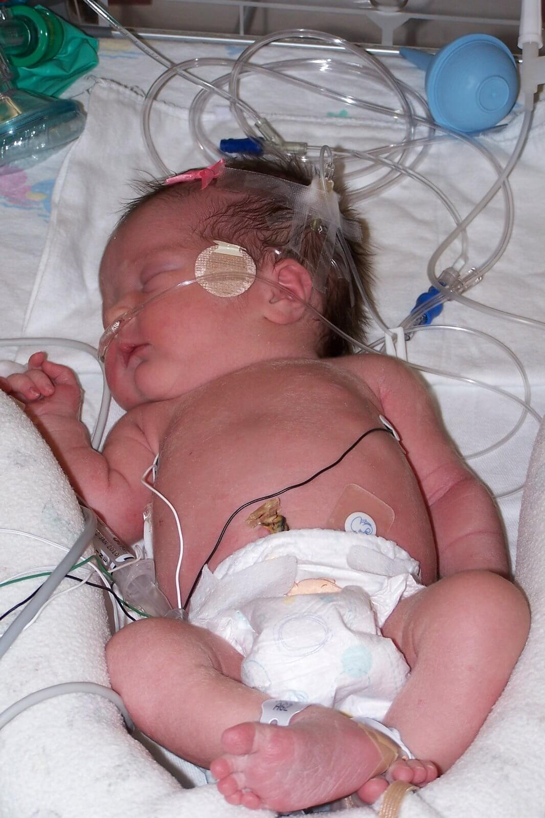 How To Do Babywise with a Preterm Baby. You can implement Babywise even with a preemie.