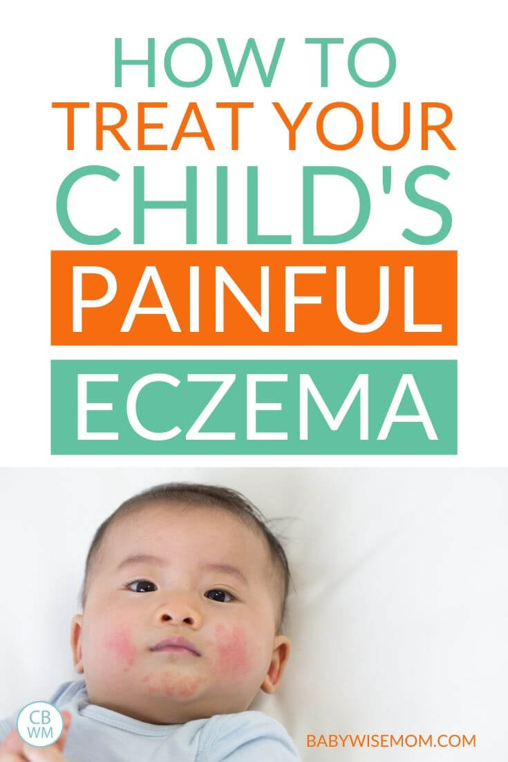 Treat your child's painful eczema pinnable image