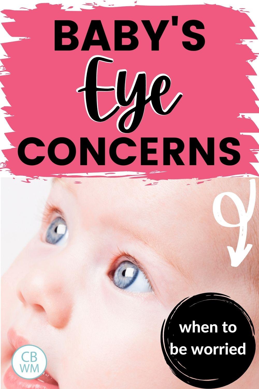 Baby's eye concerns